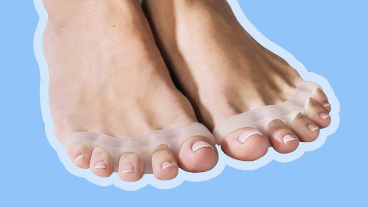 Use toe separators to heal plantar fasciitis quickly