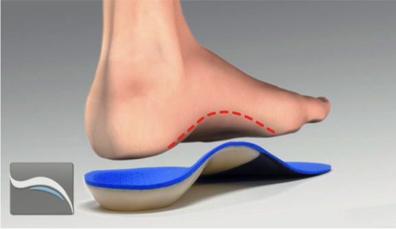 orthotics to heal Plantar Fasciitis quickly