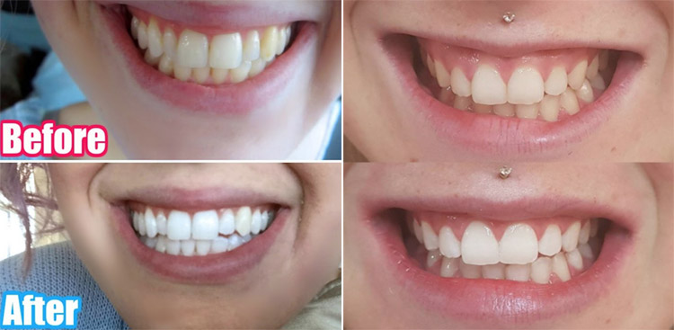Size Centimeters Snow Teeth Whitening Kit